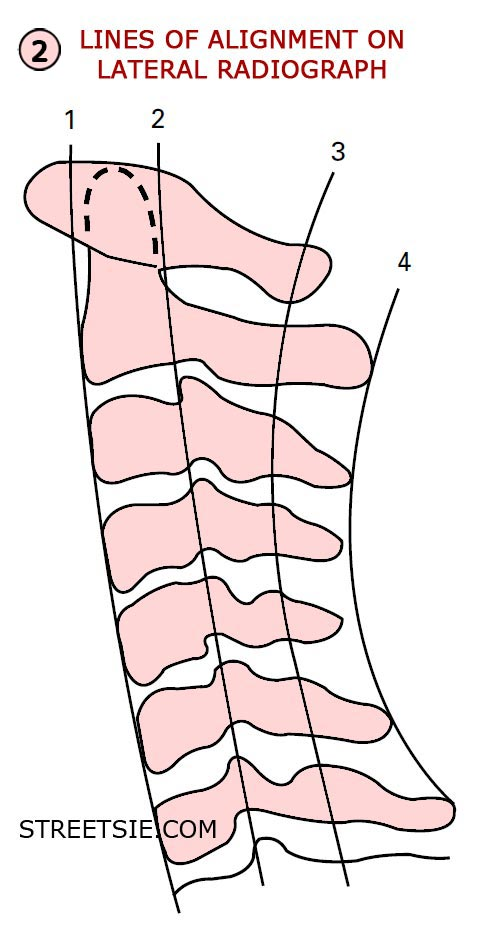 Four Lines of Cervical Alignment