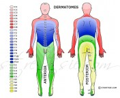 Dermatomes are areas of the skin