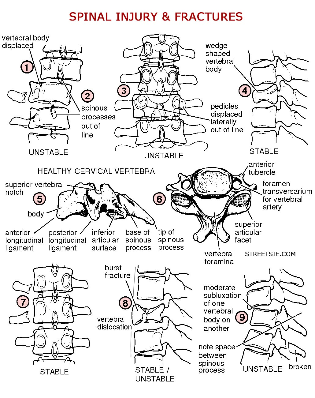 Spinal Cord Injury Radiology X-rays CT and MRI Scans