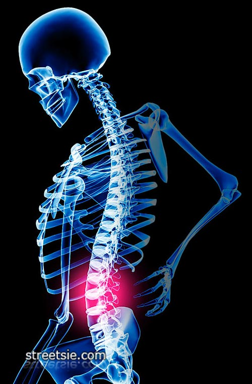 Chronic Spinal Pain