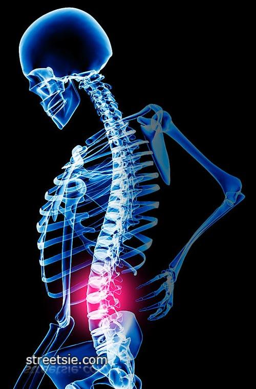 C4 c5 injury quadriplegic sexual health