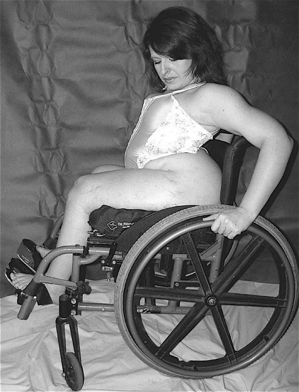nudes in wheel chairs