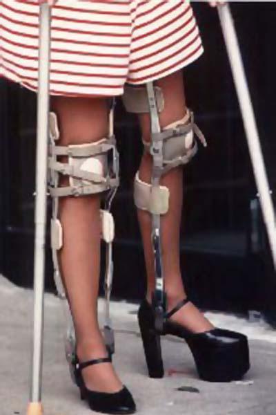 Making love with her hot paralyzed legs Dating Paraplegic Girls Wheelchair Lifestyles